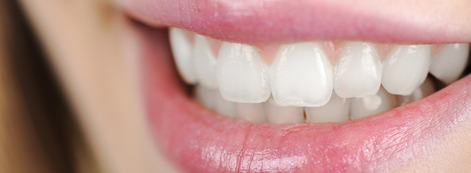 Zoom teeth whitening brisbane