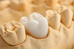 zirconia by dentist mt gravatt brisbane