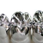 metal crown by dentist brisbane