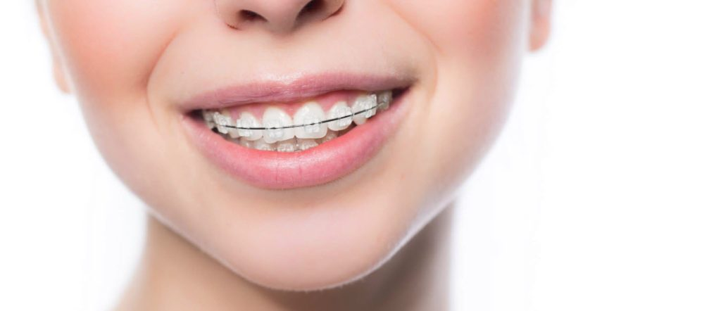 brace for teeth straightening