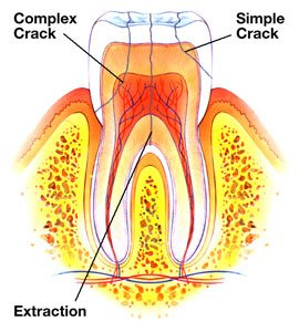 simple and complex cracks in tooth