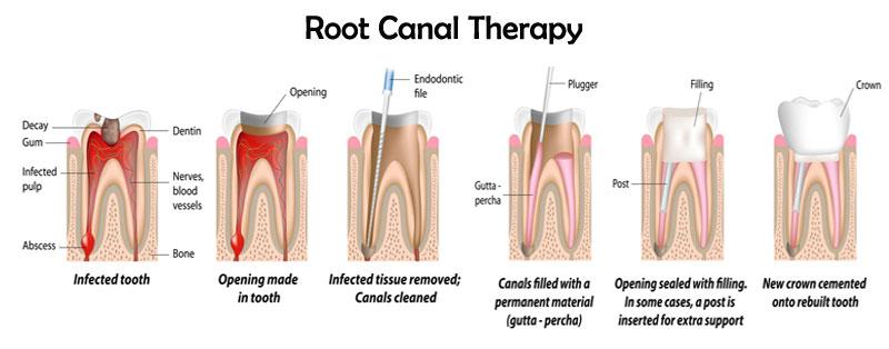 Root Canal procedure in Brisbane