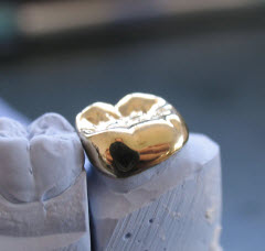 Dental Crowns in Gold