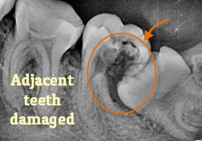 Symptoms of wisdom tooth infection