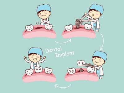 Brisbane Dental Implants
