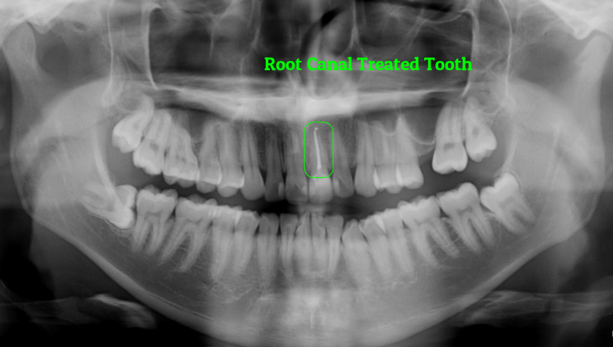 Root Canal Therapy in Brisbane