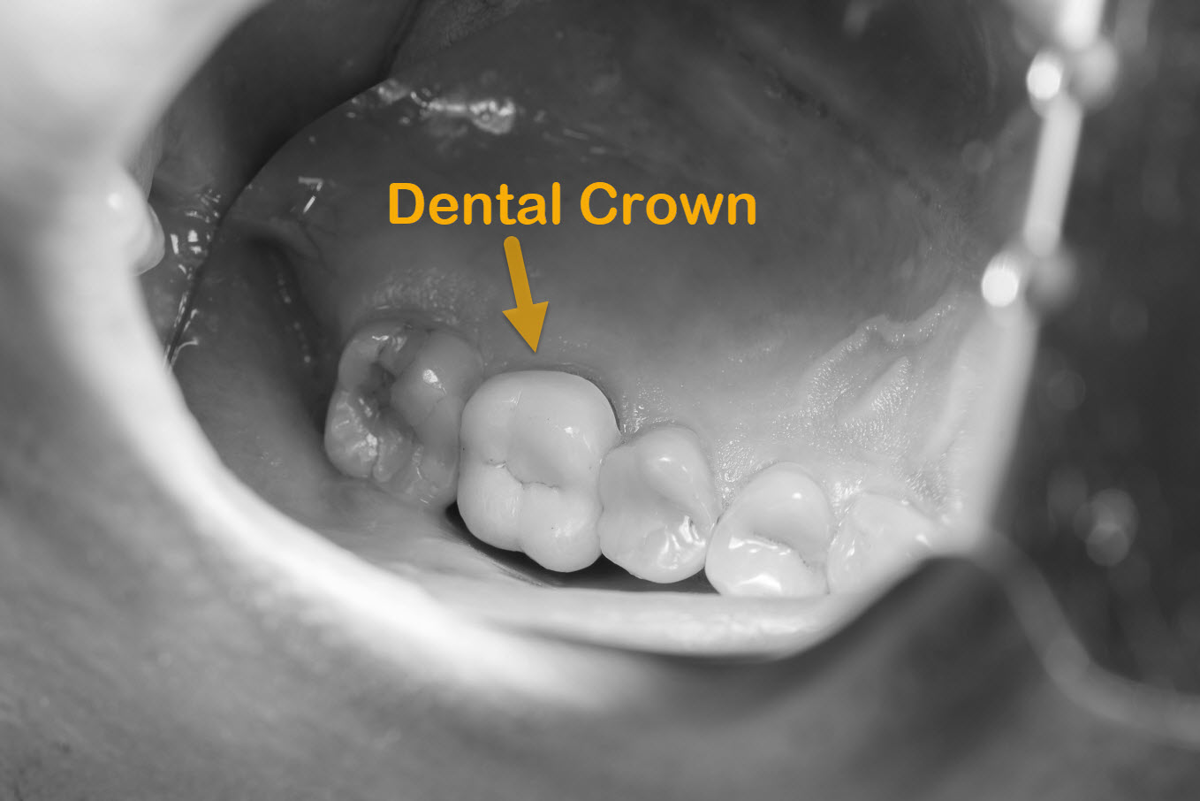 Dental Tooth Crowns Brisbane