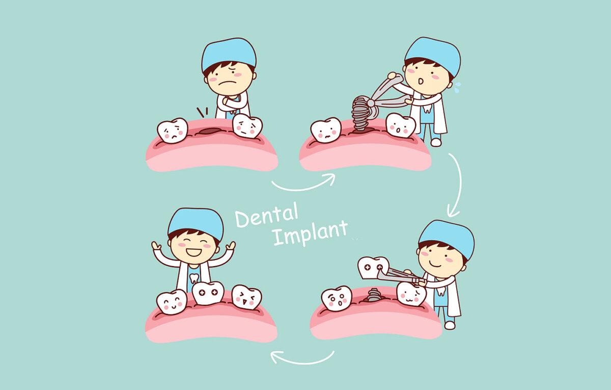 Teeth Implant in Brisbane