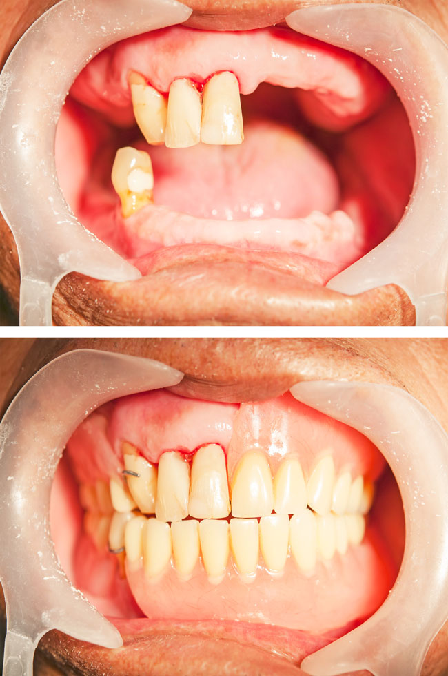 Dentures Brisbane Before and After