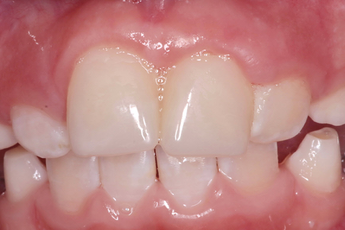 Broken tooth repaired by composite crown