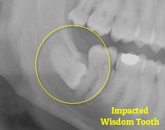 Impacted Wisdom Tooth Brisbane