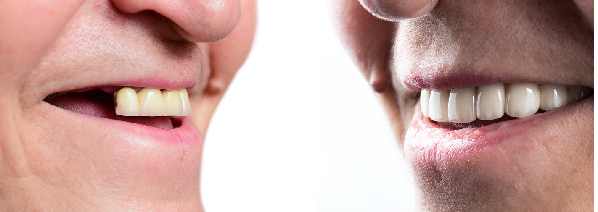 Dental implants cost Australia