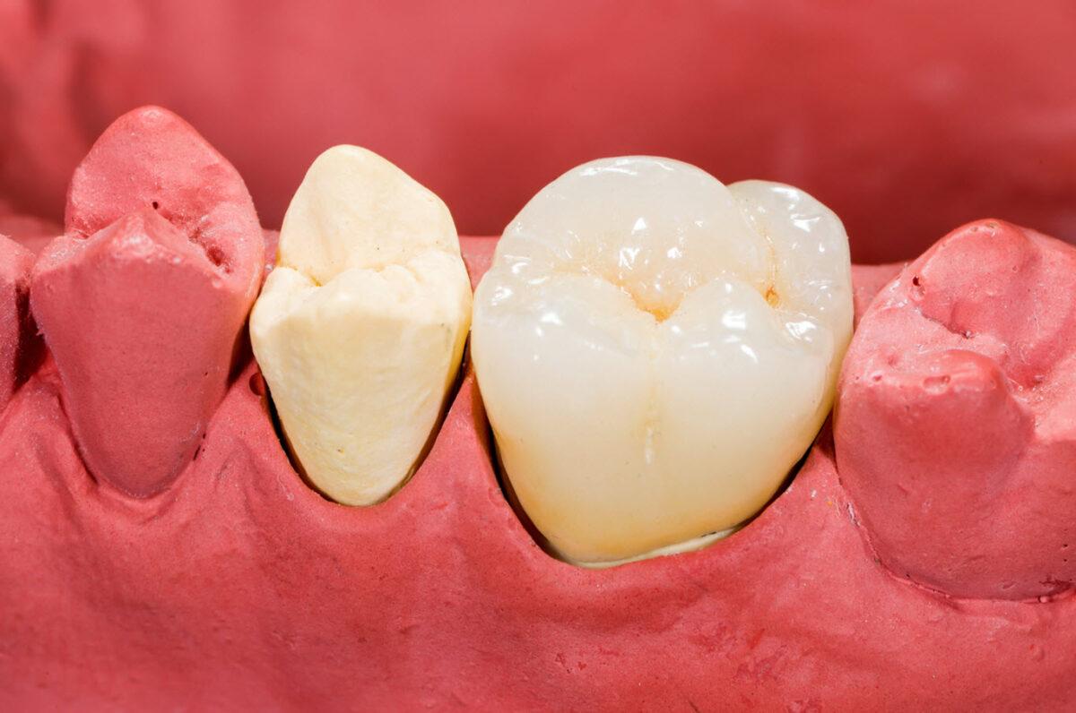 dental crown specialist