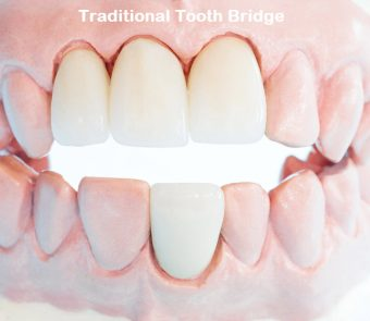 A traditional tooth bridge is one of the fastest ways to replace a missing tooth