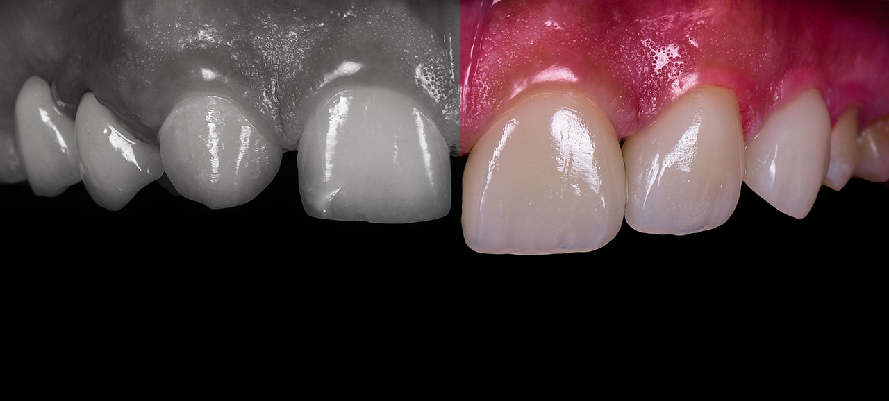dental veneers before after