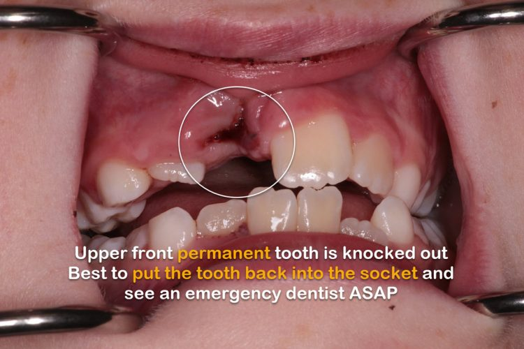 Central incisor tooth knocked out