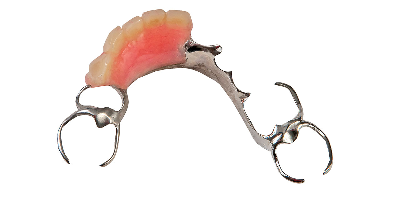 Brisbane Removable Partial Dentures